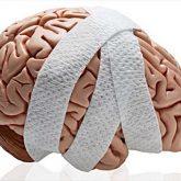 Los Mejores Abogados en Español de Lesiones Cerebrales Para Mayor Compensación en National City California